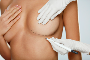 Closeup Of Naked Sexy Woman Body With Black Surgical Marks On Her Breasts